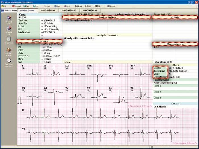 Kenz ECG Data Viewer CVS-02